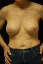 Breast Augmentation, Gel