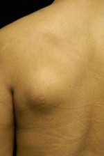 Minimal Incision and Power-assisted Liposuction Removal of Lipomas