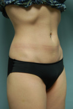 SculpSure™ Fat Removal